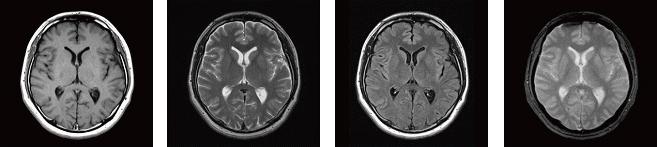 頭部MRI(脳実質の断面像)