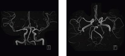 頭部MRA(脳の血管像)