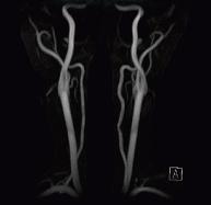 頸部MRA(頸動脈の血管像)