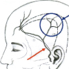 脳梗塞関連のバイパス術
