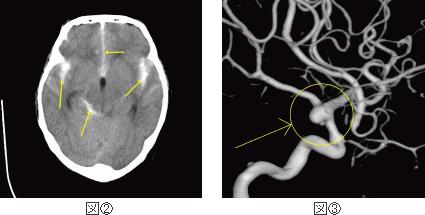 CTスキャン(図②)とMRA(図③)