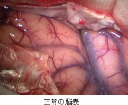 正常の脳表