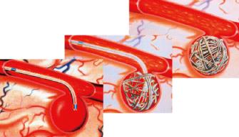 血管内手術①