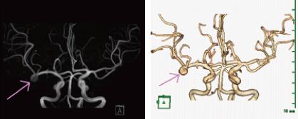 MRIによる血管撮影