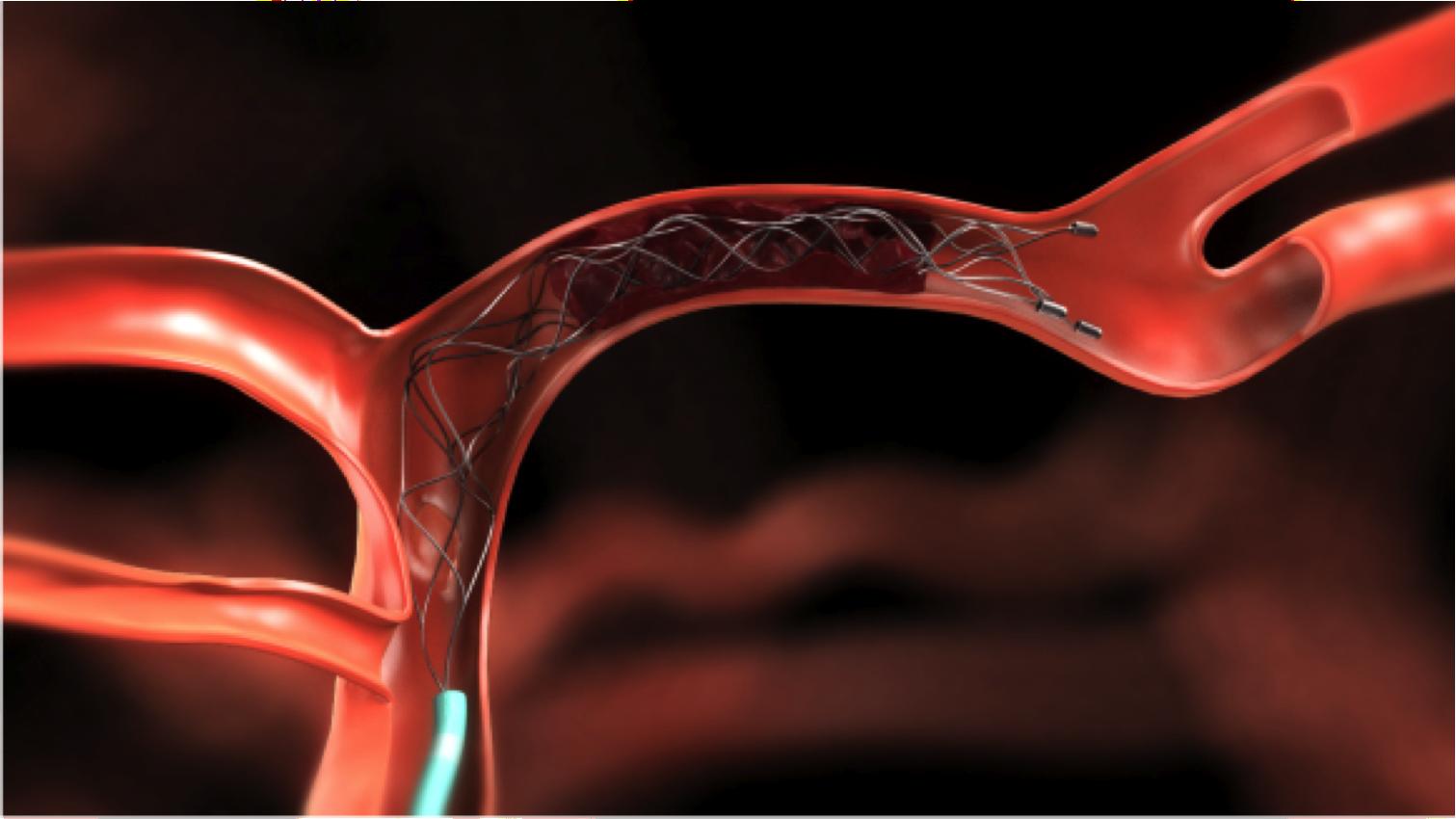 ステント型血栓回収デバイスについて