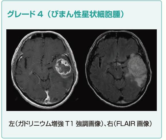 グリオーマ(神経膠腫)