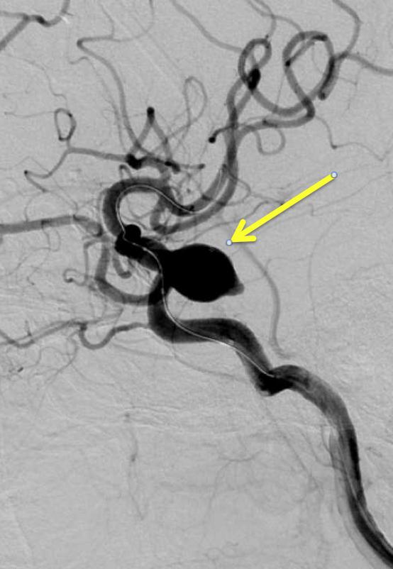 脳動脈瘤に対するコイル塞栓術について